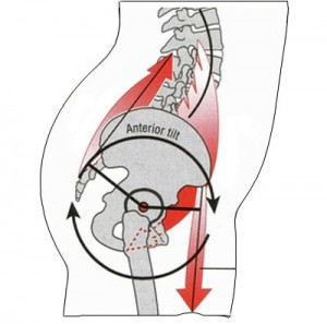 anterior-pelvic-tilt2